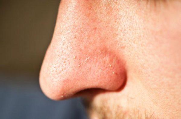 komedoni na nosu