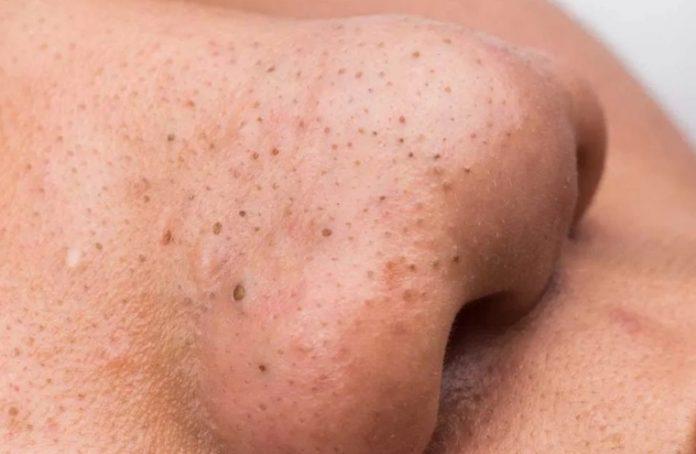 mitiseri na nosu