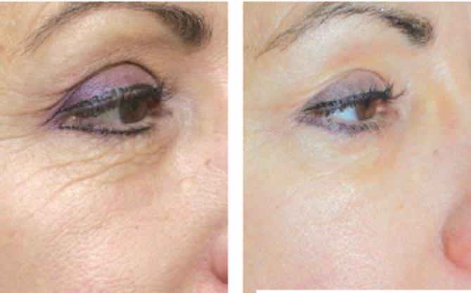 kolagen za lice