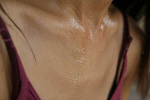 preterano znojenje